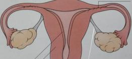 女性盆腔炎的治疗
